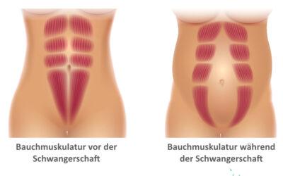 Was ist die Rektusdiastase? Thema Bauchmuskulatur: